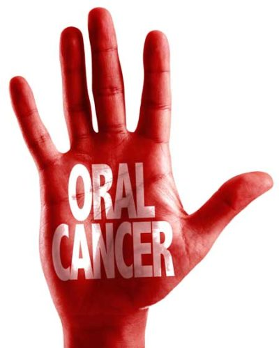 photo of red hand with oral cancer screening on it