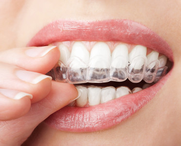 girl with invisalign