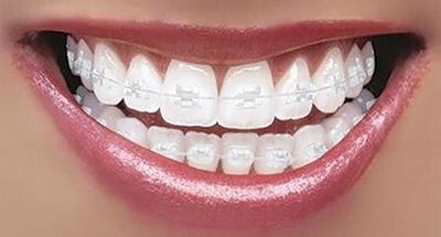 girl with orthodontic braces