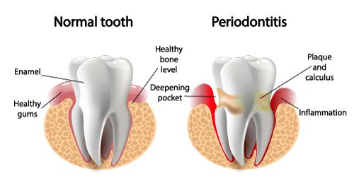 periodontics in ne calgary