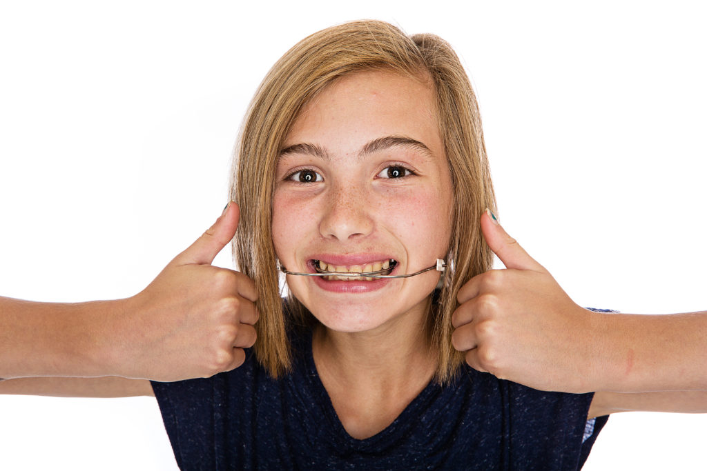girl with a retainer smiling