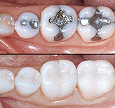 photo of Tooth Coloured Fillings before and after results
